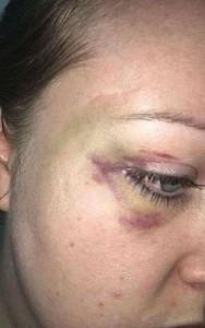monokl na obličeji Britky Hannah Jamesové, která se přestěhovala do Bahrajnu za manželem Jassimem Alhadderem