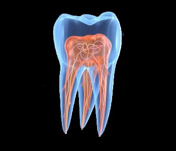 příčiny zubního kazu